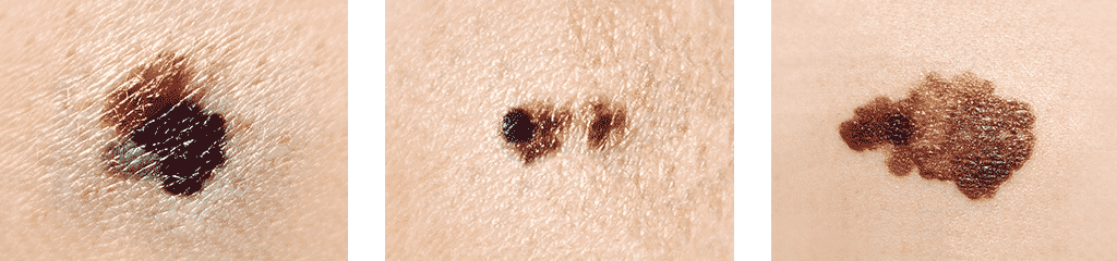 Signs of melanoma pictures